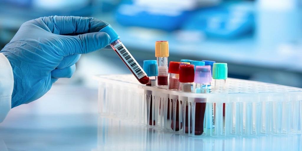 Tout savoir sur les infections respiratoires à coronavirus